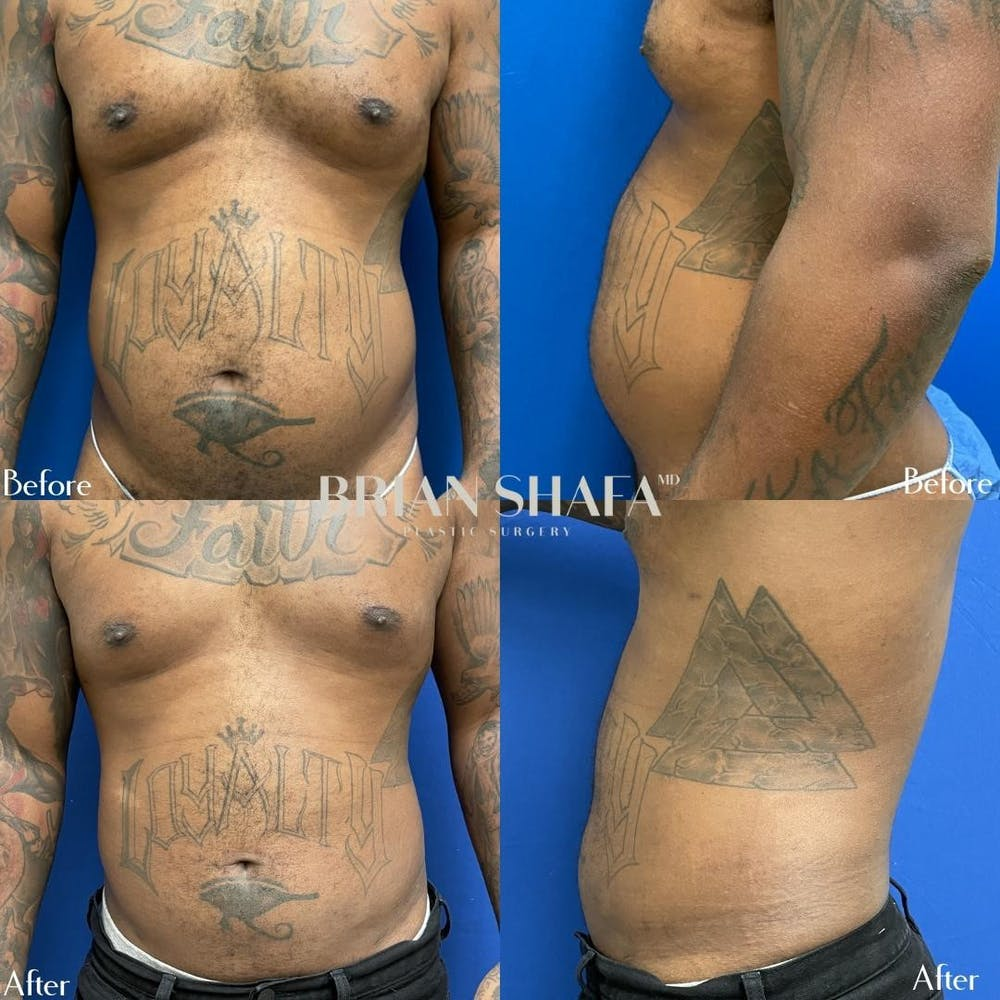 Liposuction Gallery - Patient 40314612 - Image 1