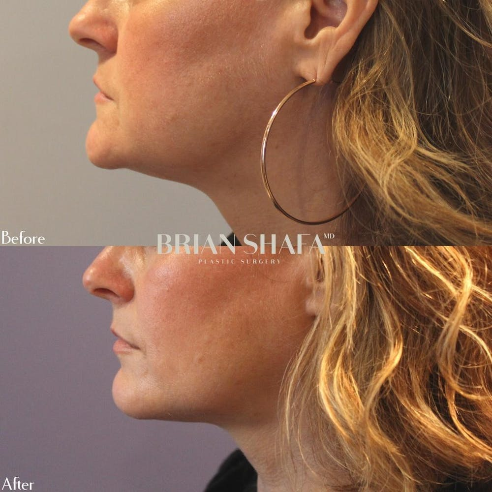 Ultherapy  Gallery - Patient 40314656 - Image 1
