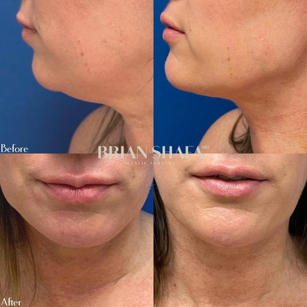 Liposuction Gallery - Patient 40314674 - Image 1