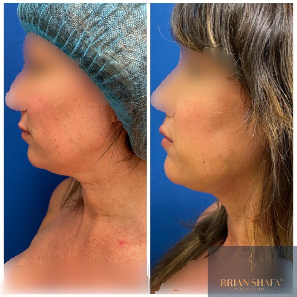 Liposuction Gallery - Patient 40314696 - Image 1