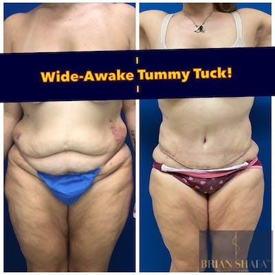 Tummy Tuck/ Abdominoplasty Gallery - Patient 40314727 - Image 1