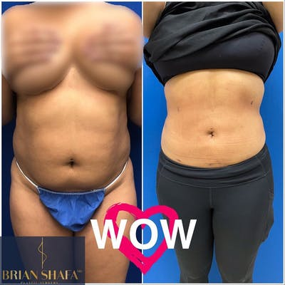 Liposuction Gallery - Patient 40314764 - Image 1