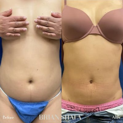 Liposuction Gallery - Patient 44539538 - Image 1