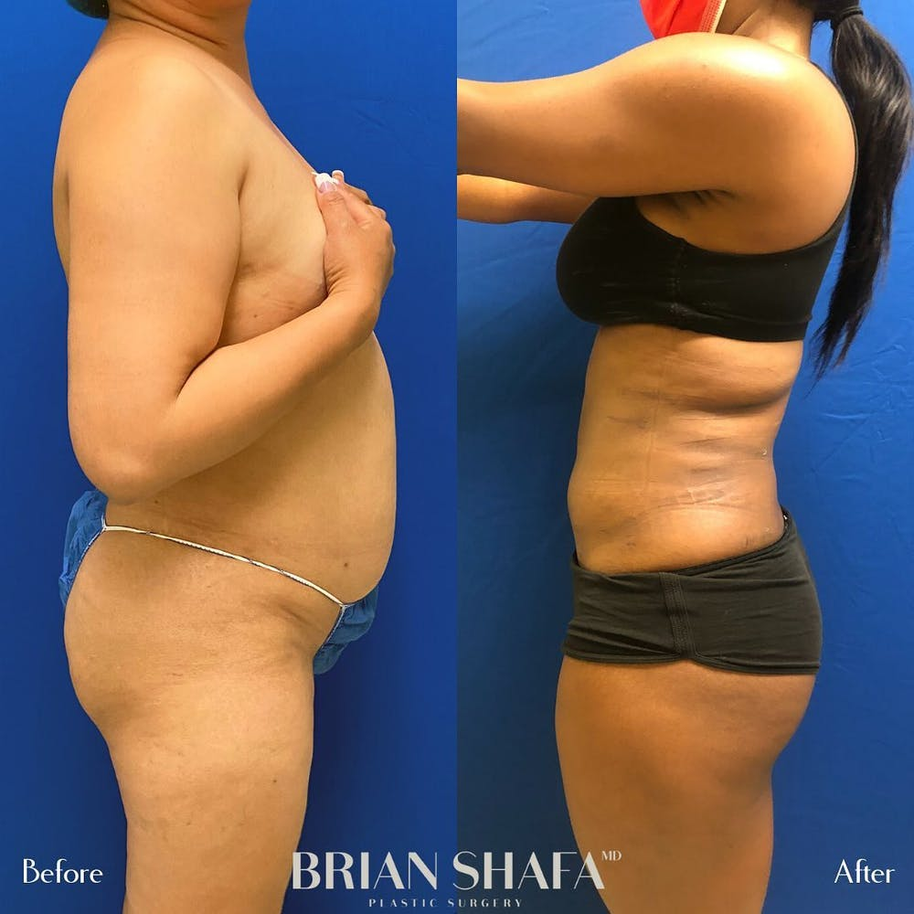 Liposuction Gallery - Patient 48796023 - Image 1