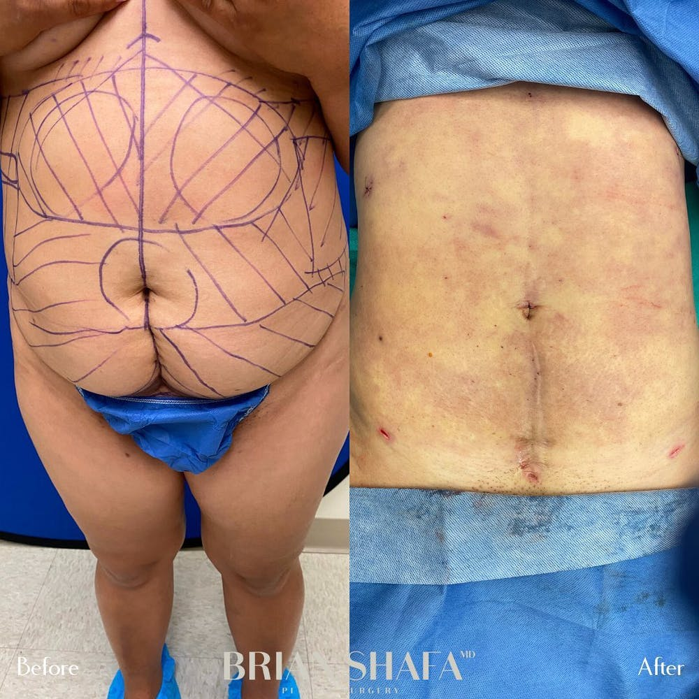 Liposuction Gallery - Patient 48796023 - Image 2