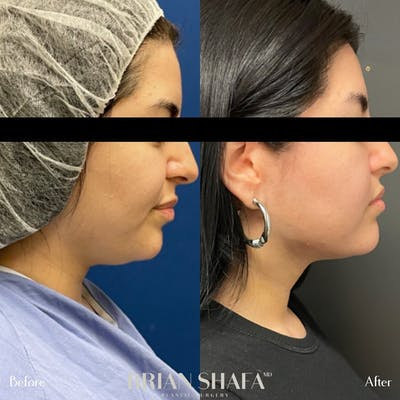 Jawline Sculpting Gallery - Patient 48796099 - Image 1