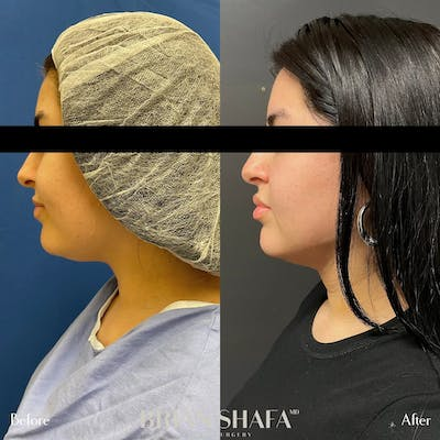 Jawline Sculpting Gallery - Patient 48796099 - Image 2