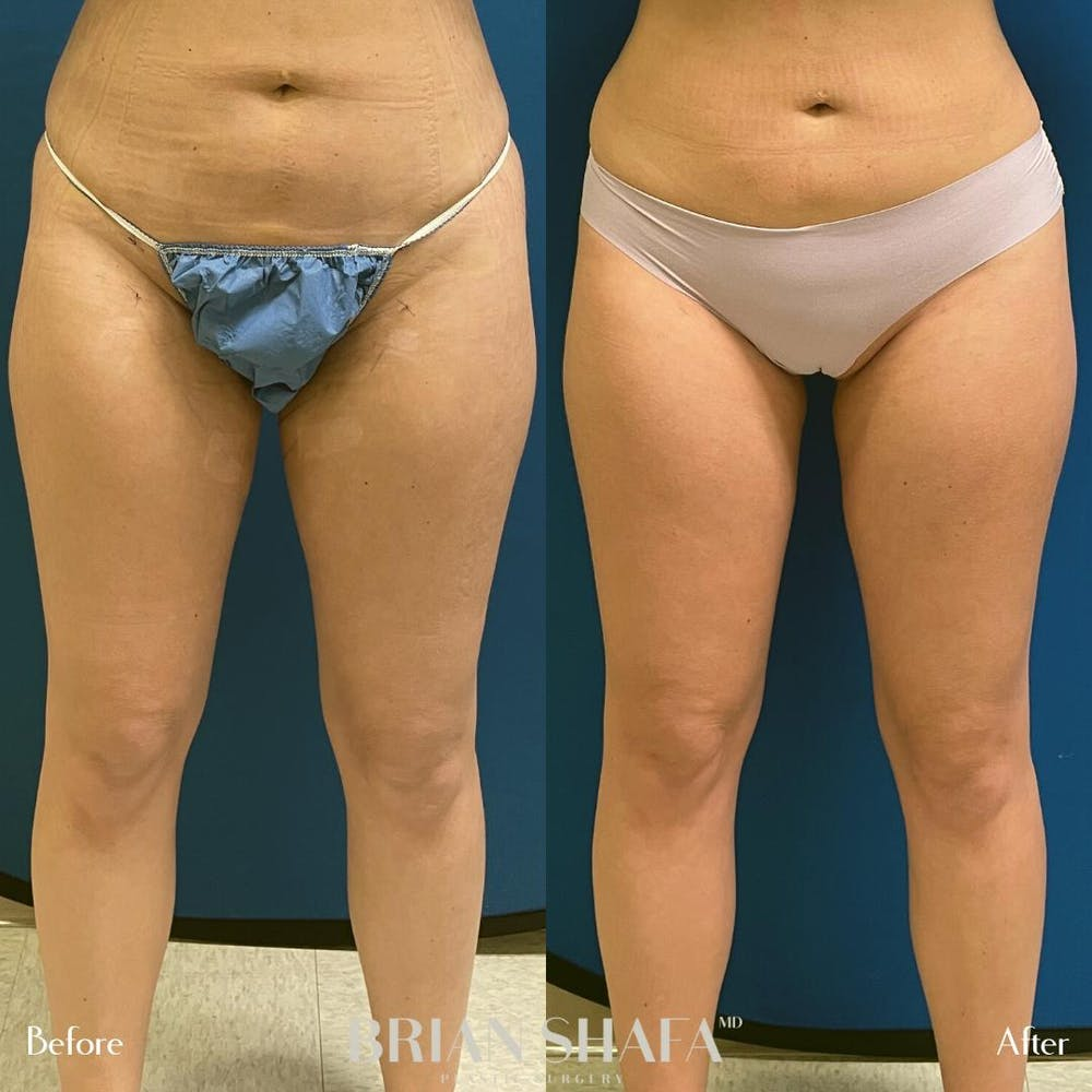 Liposuction Gallery - Patient 54674992 - Image 1