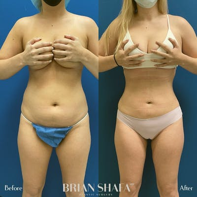 Liposuction Gallery - Patient 54674998 - Image 1