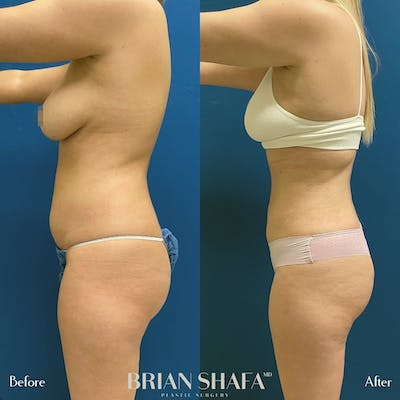 Liposuction Gallery - Patient 54674998 - Image 2