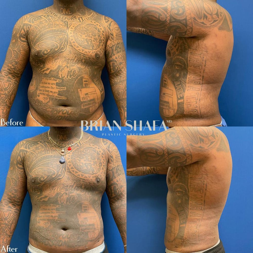 Liposuction Gallery - Patient 54675040 - Image 1