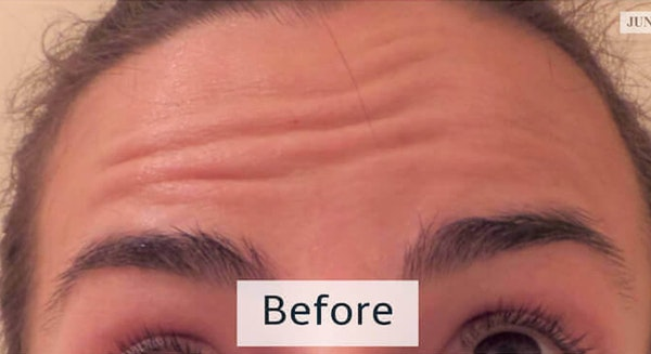 Before and after Botox in Brooklyn at Juno Medi-Spa