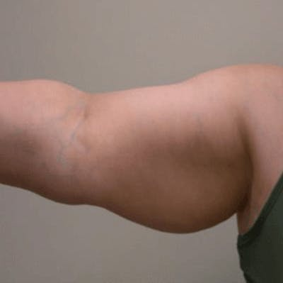 Body Contouring Gallery - Patient 11108342 - Image 1