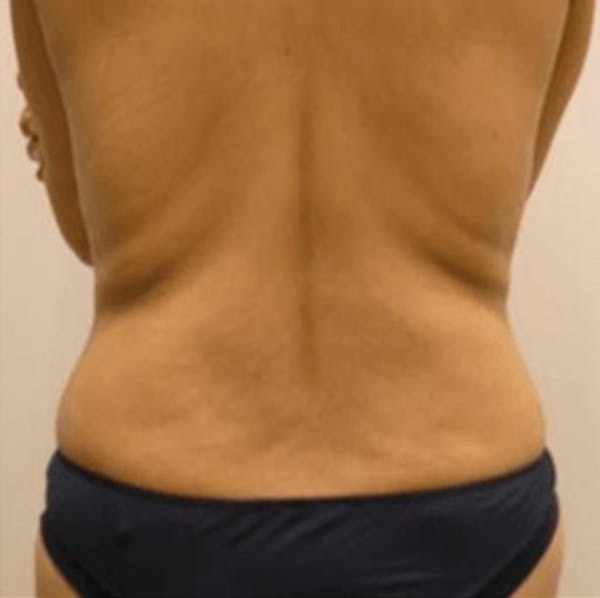 Body Contouring Gallery - Patient 11108343 - Image 1