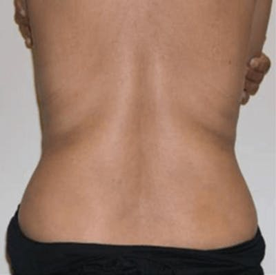 Body Contouring Gallery - Patient 11108343 - Image 2