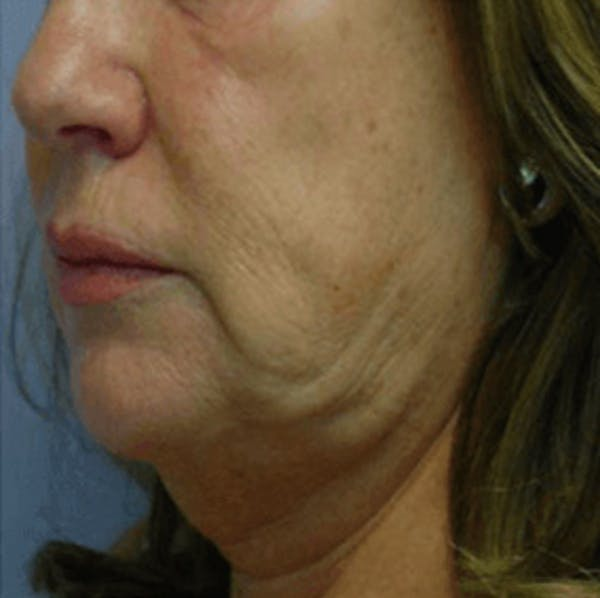 Body Contouring Gallery - Patient 11108344 - Image 1