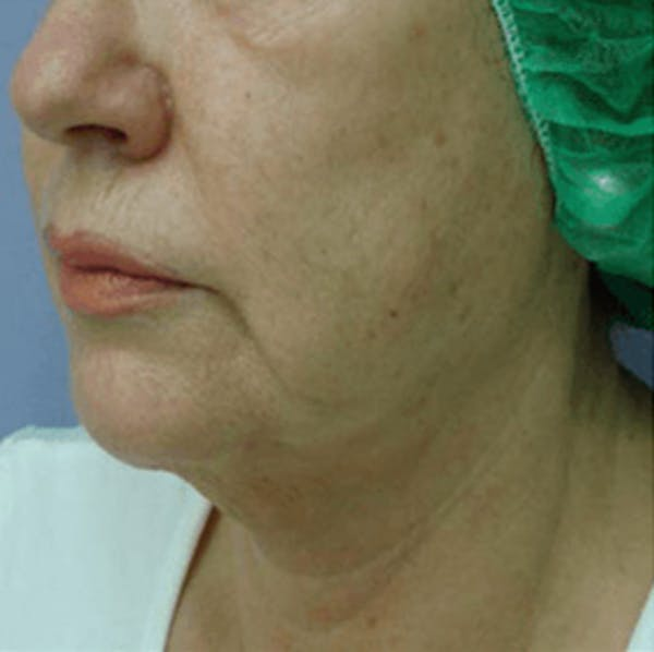 Body Contouring Gallery - Patient 11108344 - Image 2