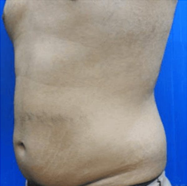 Body Contouring Gallery - Patient 11108345 - Image 1