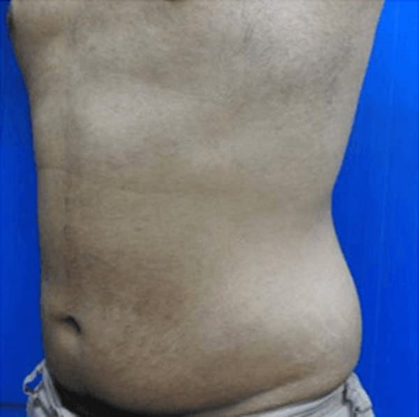 Body Contouring Gallery - Patient 11108345 - Image 2