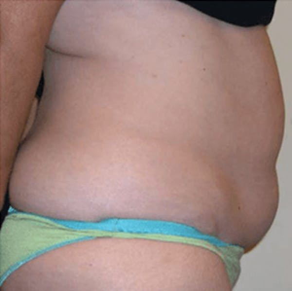 Body Contouring Gallery - Patient 11108346 - Image 2
