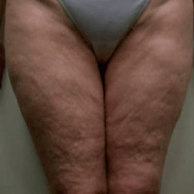Body Contouring Gallery - Patient 11108347 - Image 1
