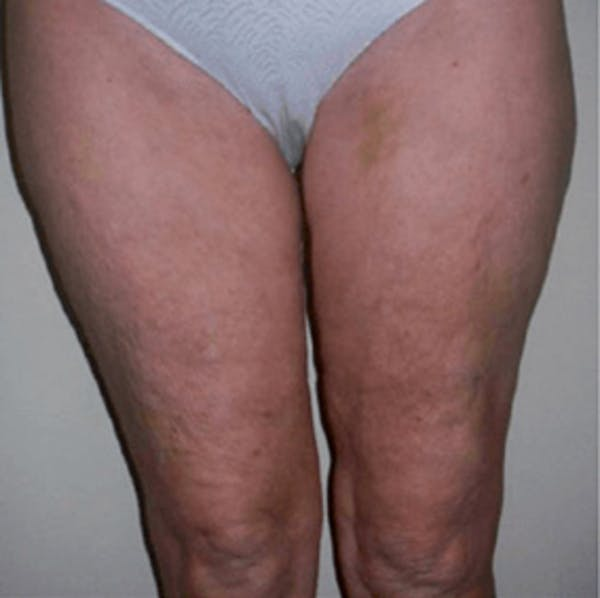 Body Contouring Gallery - Patient 11108347 - Image 2
