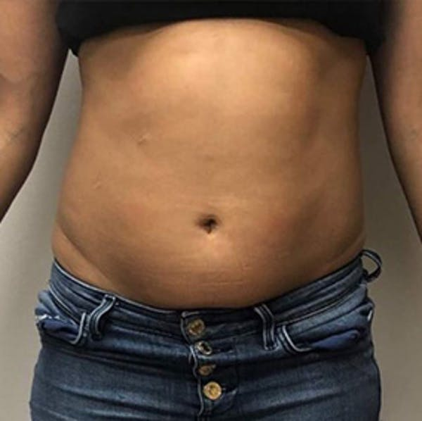 Body Contouring Gallery - Patient 11108348 - Image 1