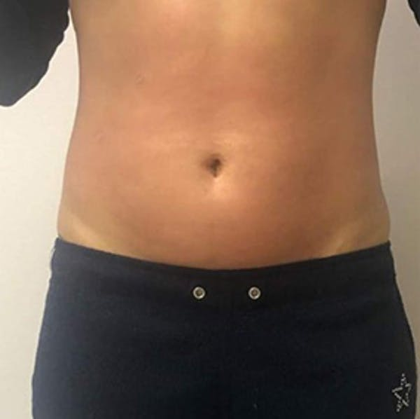 Body Contouring Gallery - Patient 11108348 - Image 2