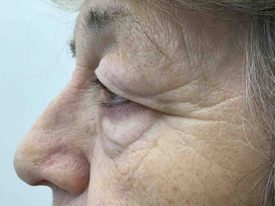 Blepharoplasty Gallery - Patient 10600899 - Image 1