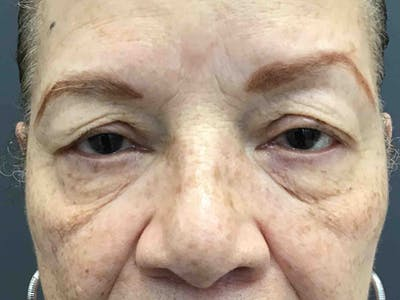 Blepharoplasty Gallery - Patient 10602199 - Image 1