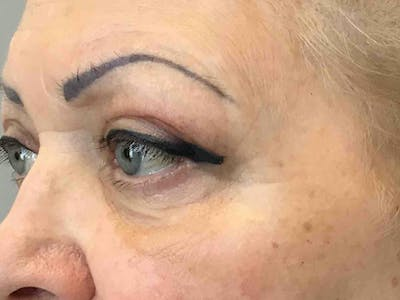 Blepharoplasty Gallery - Patient 10602200 - Image 2