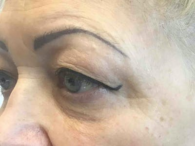Blepharoplasty Gallery - Patient 10602200 - Image 1