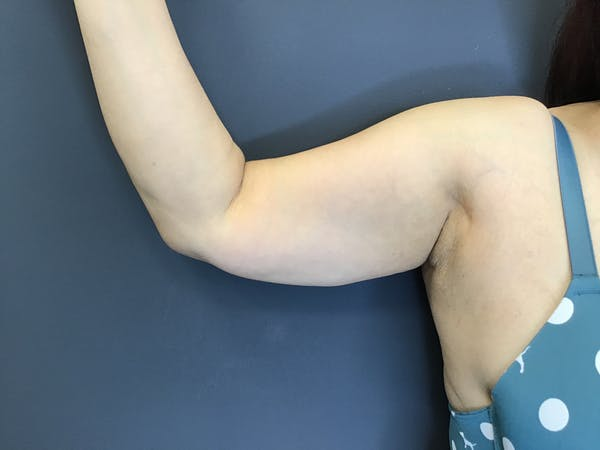 Body Contouring Gallery - Patient 10602234 - Image 2