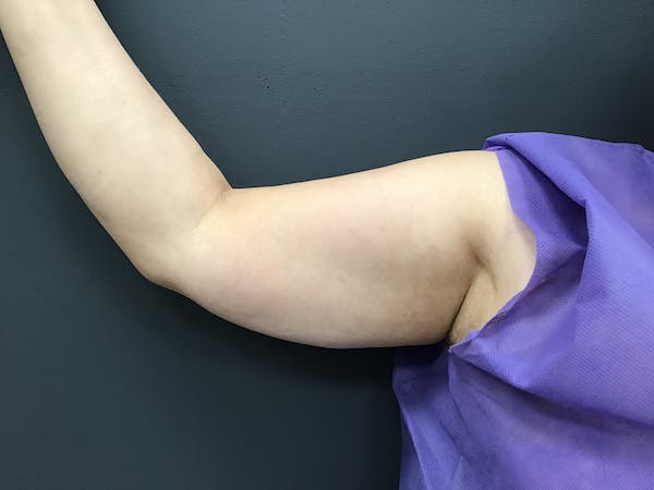 Body Contouring Gallery - Patient 10602234 - Image 1