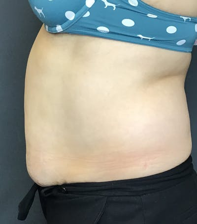Body Contouring Gallery - Patient 10602236 - Image 4