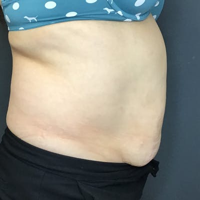 Body Contouring Gallery - Patient 10602236 - Image 6