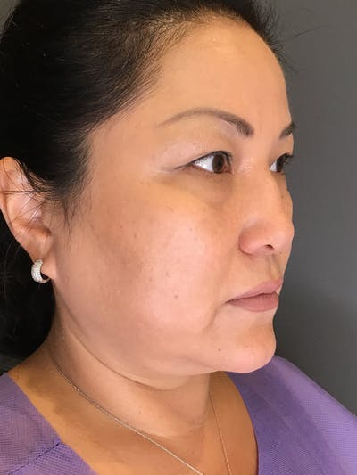 Body Contouring Gallery - Patient 10602268 - Image 1