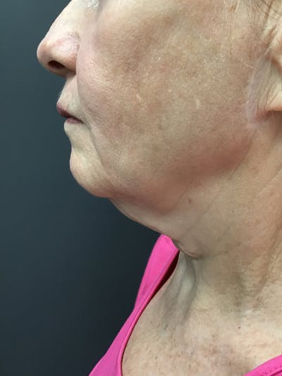 Body Contouring Gallery - Patient 10602269 - Image 1