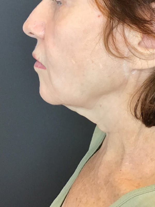 Body Contouring Gallery - Patient 10602269 - Image 2