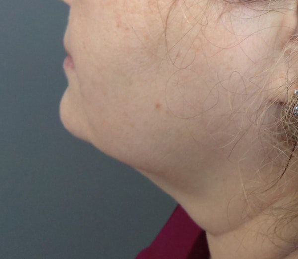 Kybella results from Juno Medi-Spa in Brooklyn