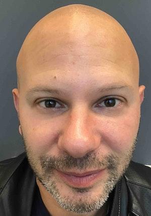Facial Fillers for Men