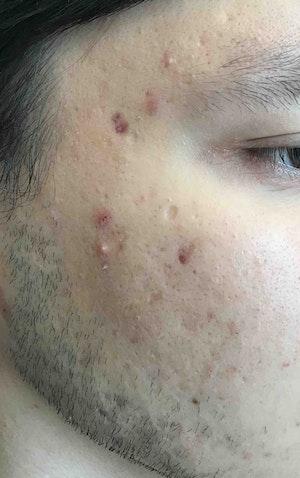 PRP Facial Rejuvenation results in Brooklyn from Juno Medi-Spa