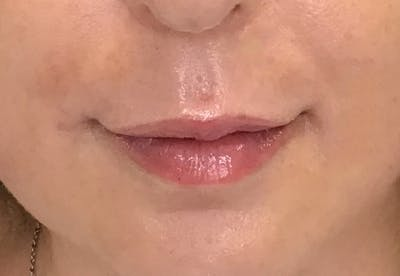 Fillers Gallery - Patient 10602330 - Image 2