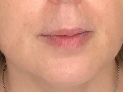 Fillers Gallery - Patient 10602330 - Image 1