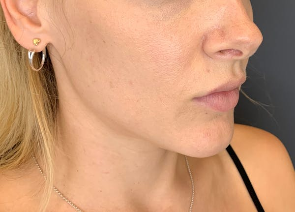Fillers Gallery - Patient 10603100 - Image 2