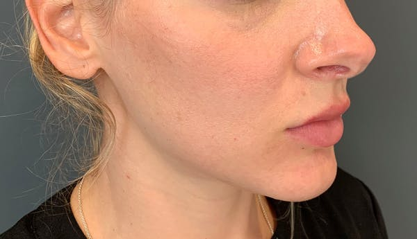 Fillers Gallery - Patient 10603100 - Image 1