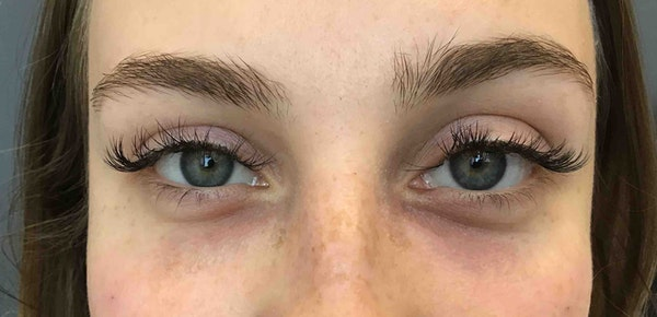 Before and after dermal fillers in Brooklyn at Juno Medi-Spa