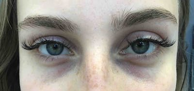 Fillers Gallery - Patient 10603101 - Image 1