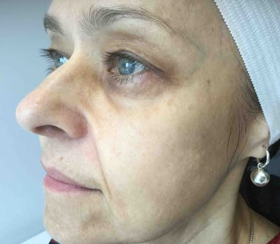 Fillers Gallery - Patient 10603102 - Image 1