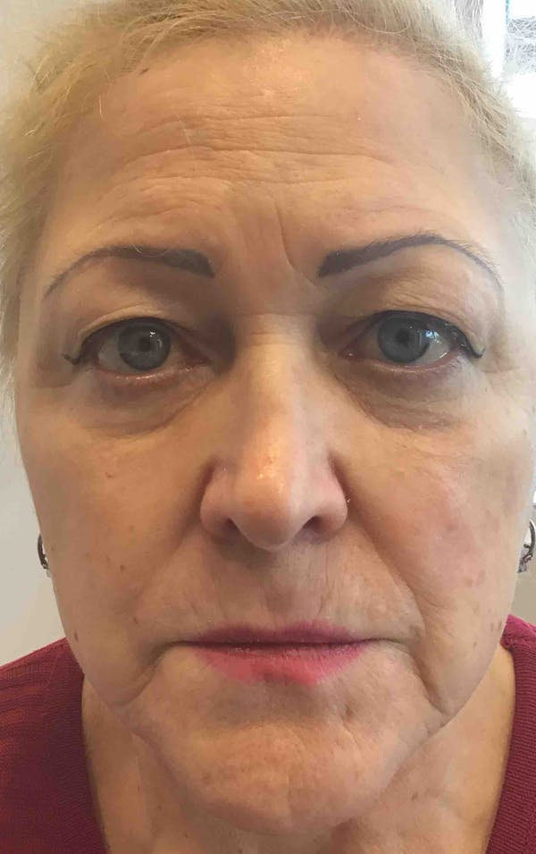 Fillers Gallery - Patient 10839904 - Image 1